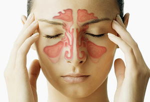 Sinusitis Polyps Definition, Causes, Symptoms, and Treatment
